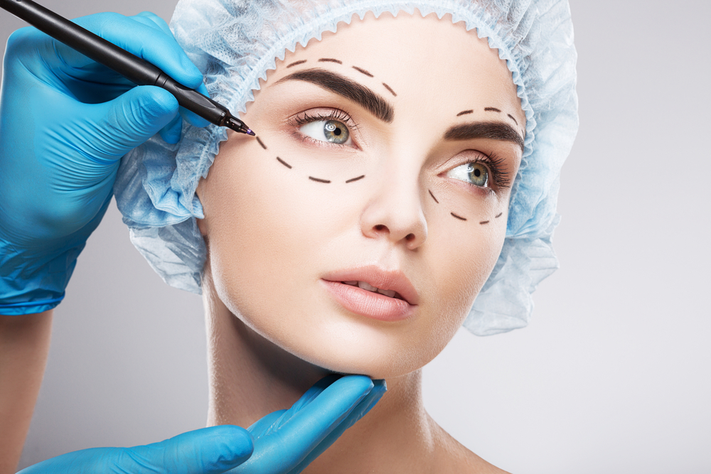 Image of female face with a doctor's hands making lines near eyes for cosmetic surgery.