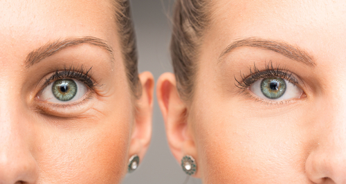 Eyes of woman with and without eye bag before and after cosmetic treatment.