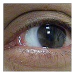 pterygium-after.jpg