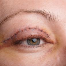 Image of Woman's Eye with Stitches from Eyelid Surgery