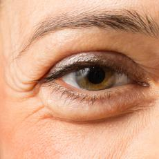 Eyelid Malpositions Explained